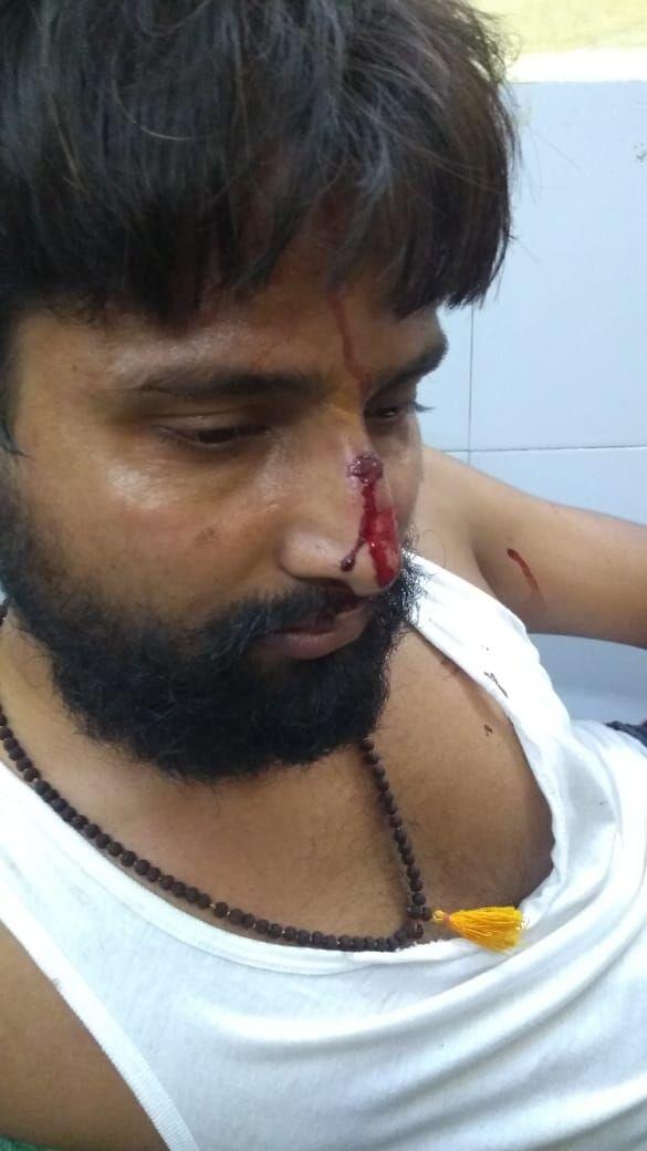 बीबीएयू के पूर्व छात्र अनुपम पाठक को हॉस्टल में बुरी तरह मारा गया